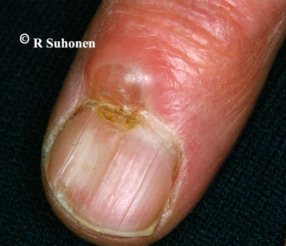 A myxoid cyst at the level of the proximal nail fold