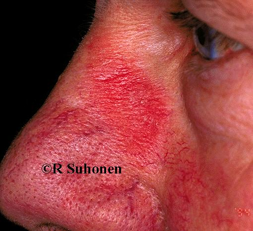 A patch of subacute dermatitis on the side of the nose