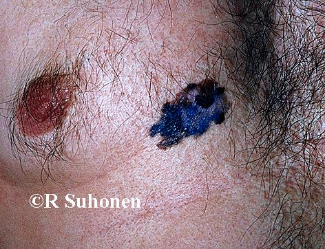 A superficially spreading melanoma on the chest