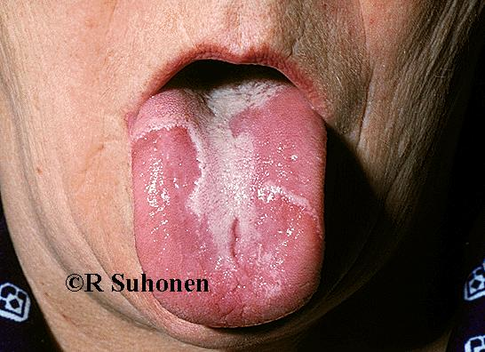 """Geographic tongue"", glossitis migrans transitoria"
