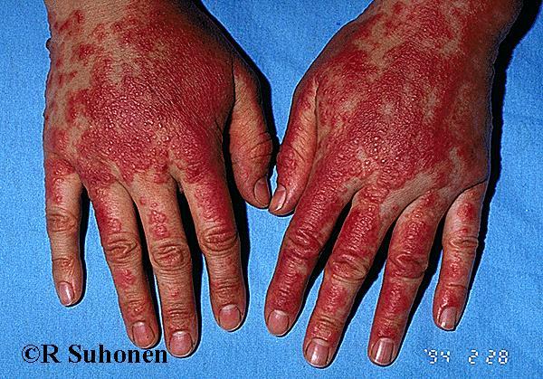 Allergic hand dermatitis (Primula)