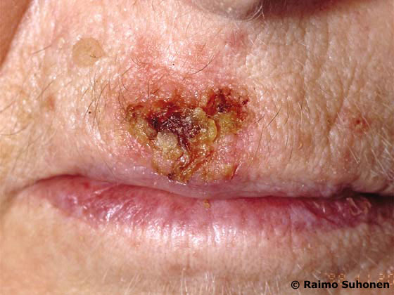 Actinic keratosis in the upper lip