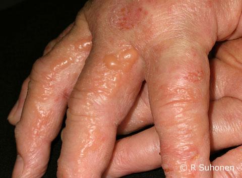 Acute weeping vesicular dermatitis
