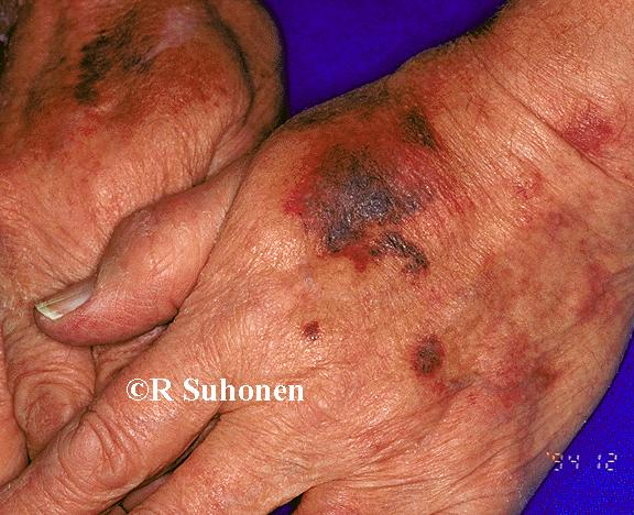 Age atrophy with ecchymoses on the back of the hand