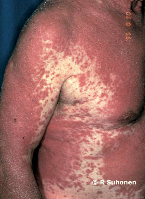 Allergic exanthema caused by carbamazepine