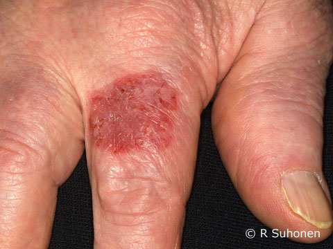 Actinic keratosis in a finger