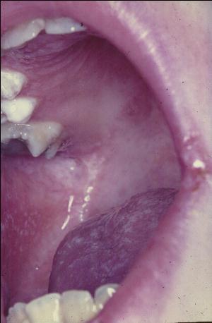 APECED: Oral candidiasis and leukoplakia