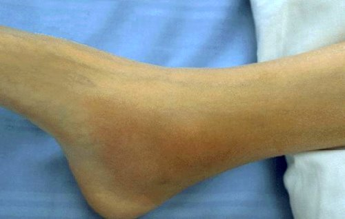 Acute arthritis in the ankle associated with Reiter's syndrome