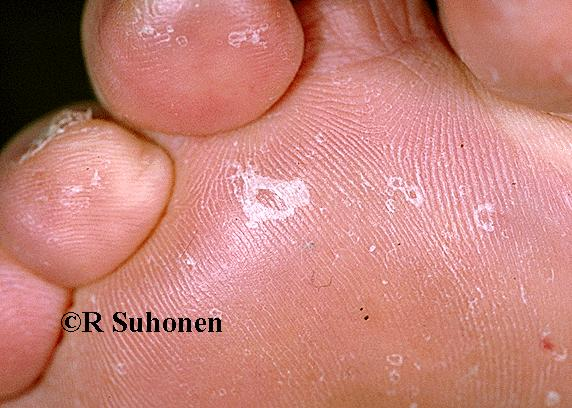 """""""Dry-type tinea"""" on plantar skin"""