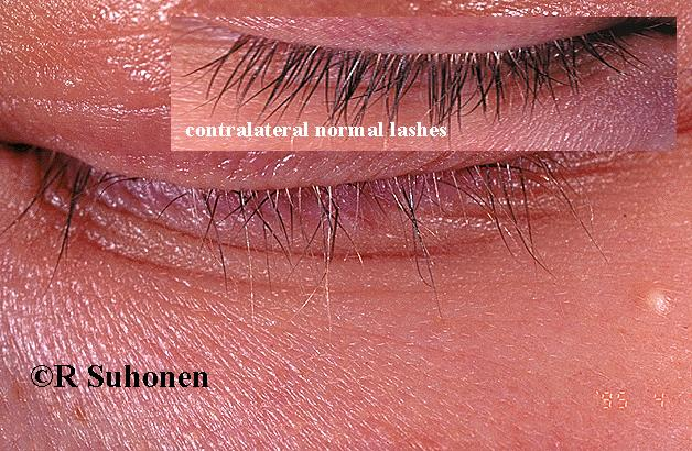 Alopecia areata of the eyelashes