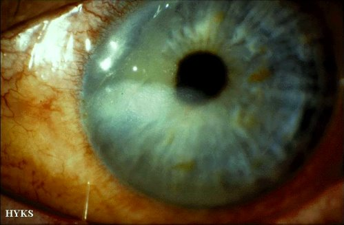 Alkali burn of the cornea