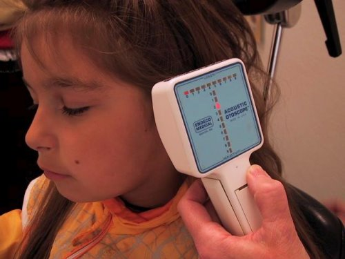 Acoustic reflectometry to detect middle ear effusion
