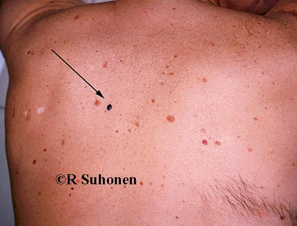 A small nodular malignant melanoma on the back