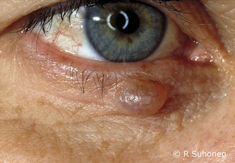 An eccrine cyst in the lower eyelid
