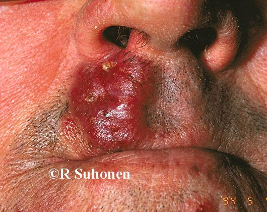 A T-cell lymphoma on the upper lip