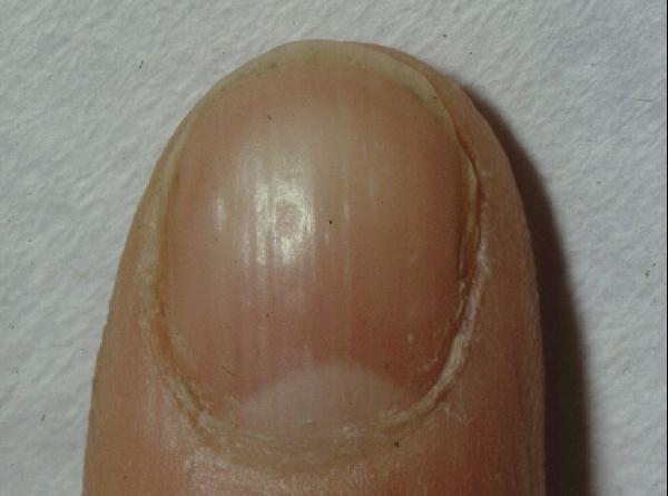APECED: Pitted nail dystrophy