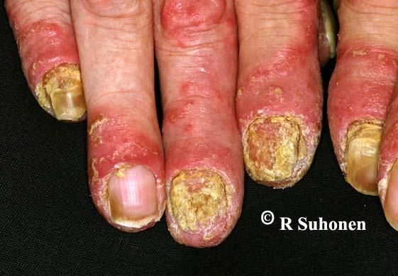 Acrodermatitis continua