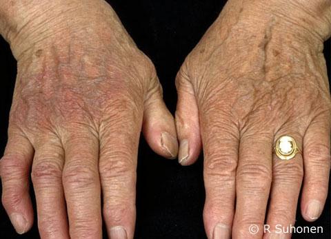 Acrodermatitis chronica atrophicans (ACA)