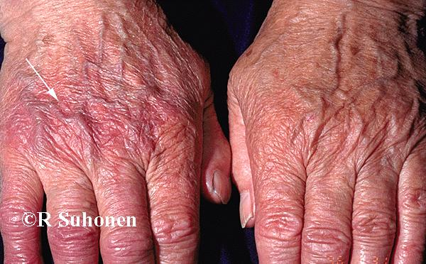 Acrodermatitis chronica atrophicans on the dorsal aspect of the hands