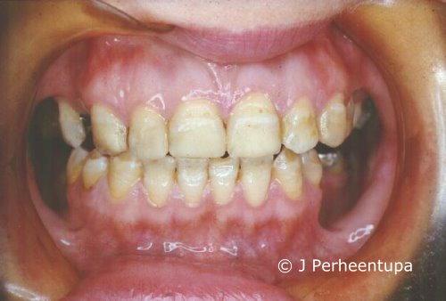 APECED: Dental enamel hypoplasia