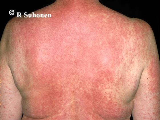 Allergic exanthema