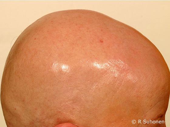 Alopecia universalis
